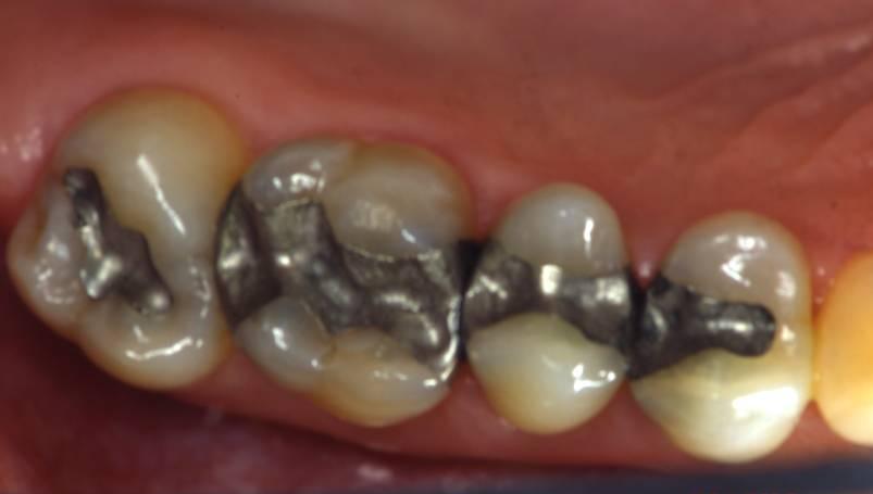 Biocompatibilità dell'amalgama dentale