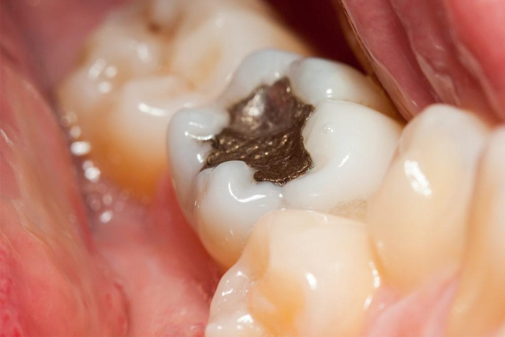 """Il caso """"amalgama dentale"""" delle Iene"""