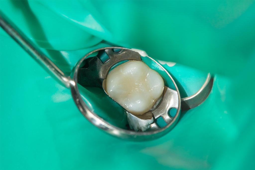 Diga dentale di gomma