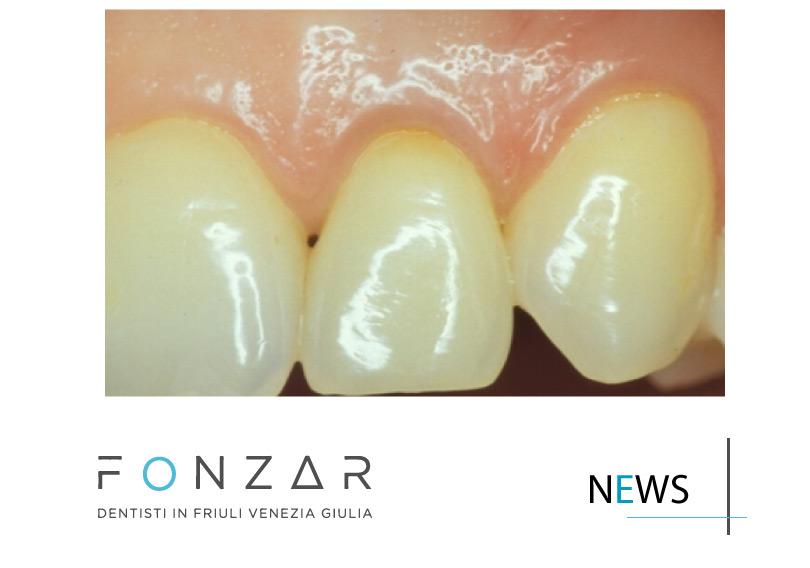 sbiancamento del singolo dente: caso estetico